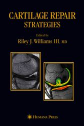 Cartilage Repair Strategies by L. Peterson