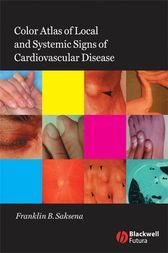 Color Atlas of Local and Systemic Manifestations of Cardiovascular Disease by Franklin B. Saksena