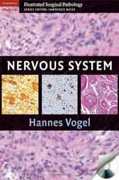 Nervous System by Hannes Vogel