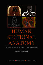 Human Sectional Anatomy, 2Ed by Adrian Dixon
