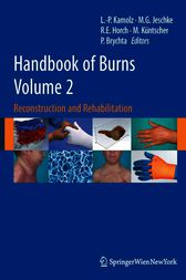 Handbook of Burns Volume 2 by Lars-Peter Kamolz
