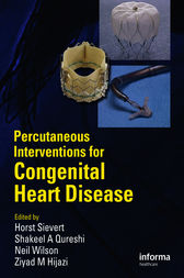 Percutaneous Interventions for Congenital Heart Disease