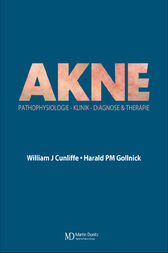 Acne by William J Cunliffe