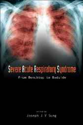 Severe Acute Respiratory Syndrome (SARS) by Joseph J Y Sung