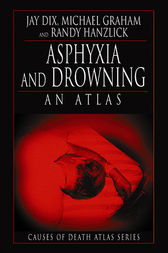 Asphyxia and Drowning by Jay Dix