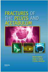 Fractures of the Pelvis and Acetabulum by Wade  R. Smith