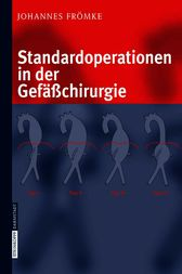 Standardoperationen in der Gefäßchirurgie by Johannes Frömke