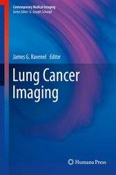 Lung Cancer Imaging