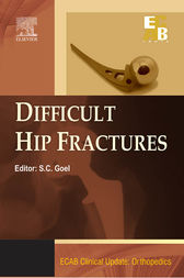 ECAB Difficult Hip Fracture - E-Book by SC Goel