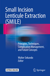 Small Incision Lenticule Extraction (SMILE) by Walter Sekundo