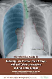 The Unofficial Guide to Radiology: 100 Practice Chest X-Rays, with Full Colour Annotations and Full X-Ray Reports